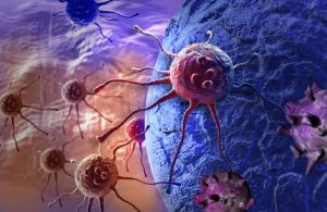 איחור באבחון סרטן